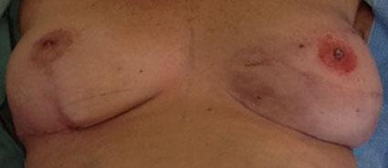 dermopigmentation-reparatrice-areoles-mammaires-apres2
