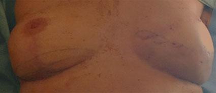 dermopigmentation-reparatrice-areoles-mammaires-avant2