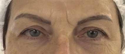 maquillage-permanent-eyeliner-avant1