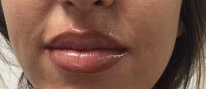 maquillage-permanent-levres-apres2