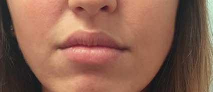 maquillage-permanent-levres-avant2